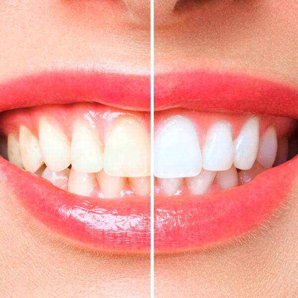 Blanqueamiento dental Noan Sthetic